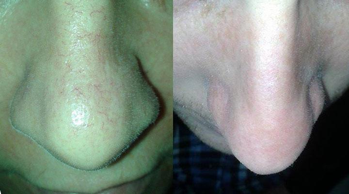 Efekt po pierwszym zabiegu zamykania naczynek krwionośnych na nosie