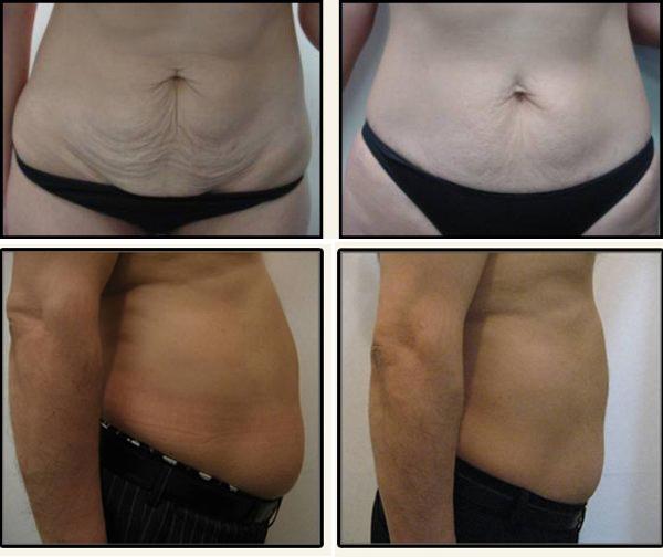 Dzięki tej metodzie można skutecznie zredukować cellulit i tkankę tłuszczową.